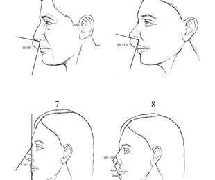 Cirugia de la nariz: Rinoplastia y rinoseptoplastia