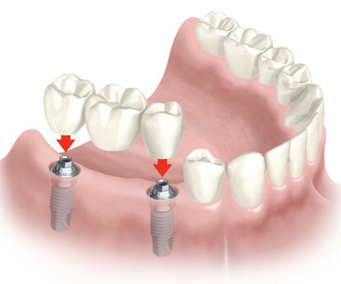 Implantes dentales: Tratamientos de Clínica Dental Fortaña-Giménez