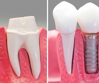 Cirugía maxilofacial: Tratamientos de Clínica Dents
