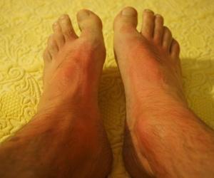 Ocasiones en las que no son recomendables los masajes