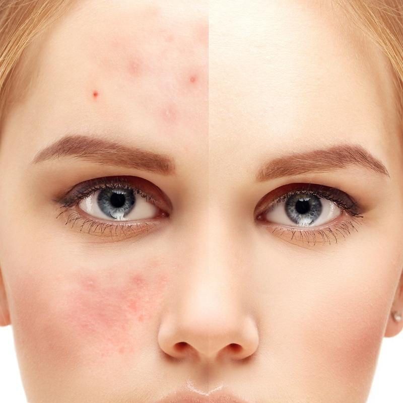 Tratamiento de acné juvenil natural: Servicios de Centro de Belleza Marlett