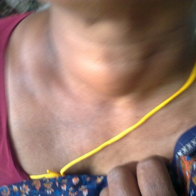 El tratamiento de los adenomas