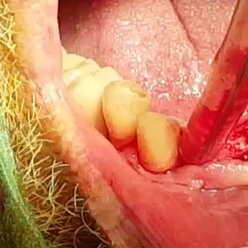 Cirugía denta en Madrid centro | Perioim