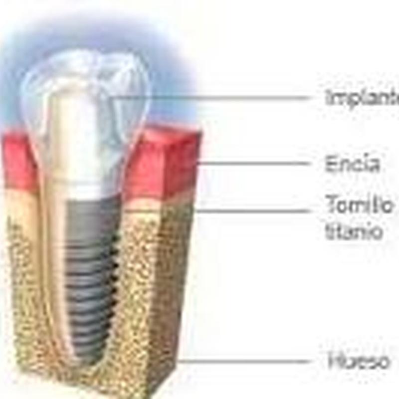 Mantenimiento de los implantes: Tratamientos de Hospident Clínica Dental