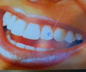 Precios piercing dental Murcia, piercing dental brillante Murcia, brillante dental Murcia, skice Murcia, piercing dental en Murcia, piercing dental precios Murcia, ofertas brillantes dentales Murcia, piercing Murcia, clínica dental Murcia, dentista Murcia