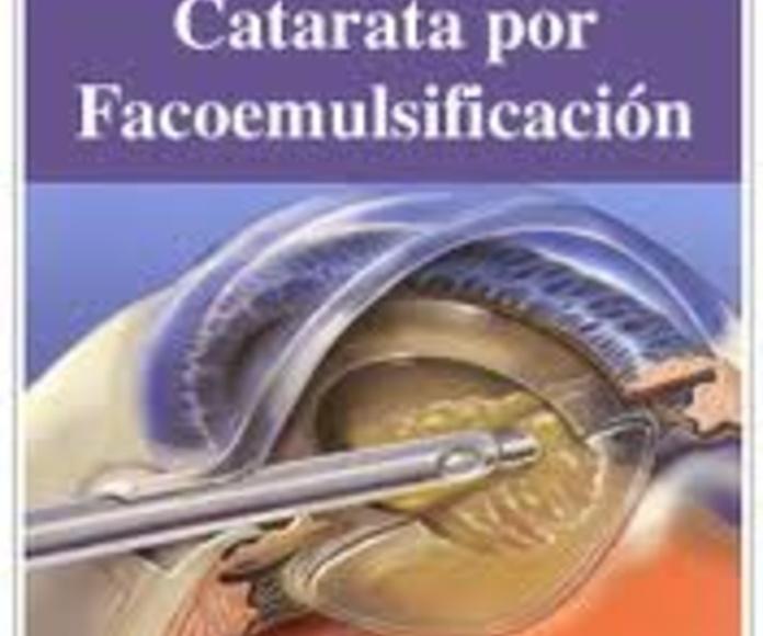Facoemulsificación