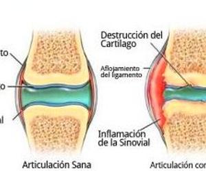 CONDROPROTECTORES: tu mejor aliado frente a la osteoartritis