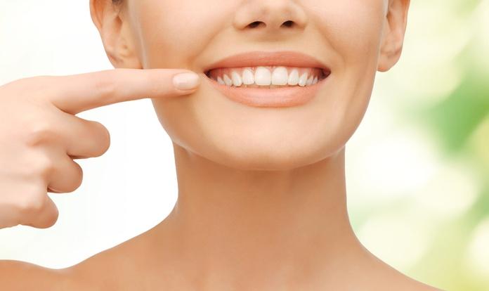 Carillas dentales. Servicio urgente
