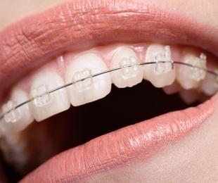 ¿Conoces la ortodoncia autoligable?