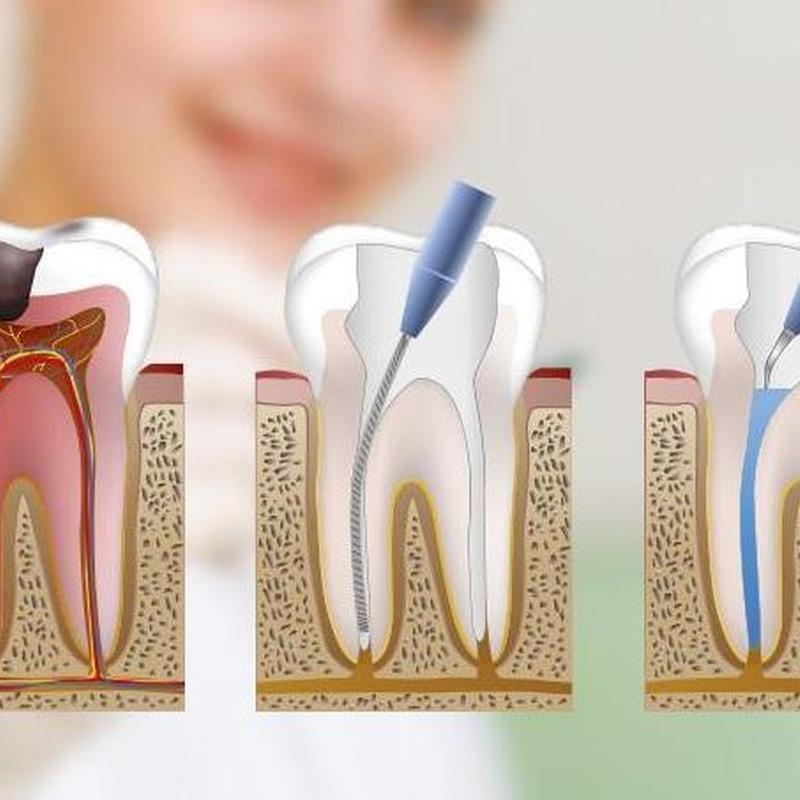 Limpieza, empastes y endodoncias: Catálogo de Centro de Salud Dental FamilDent