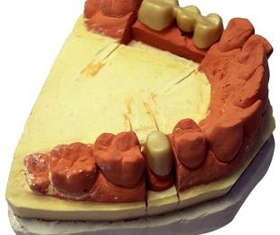 Prótesis fija y removible