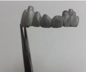 Prótesis fija sobre implante