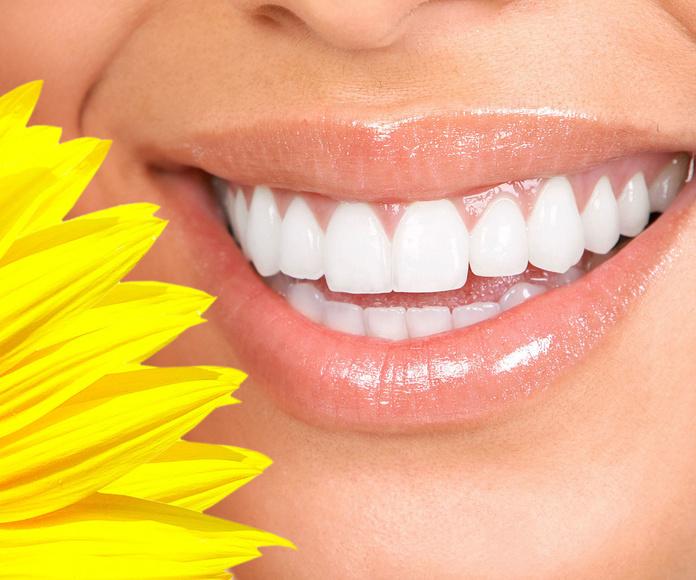 Blanqueamientos: Tratamientos de Clínica Dental Sant Roc