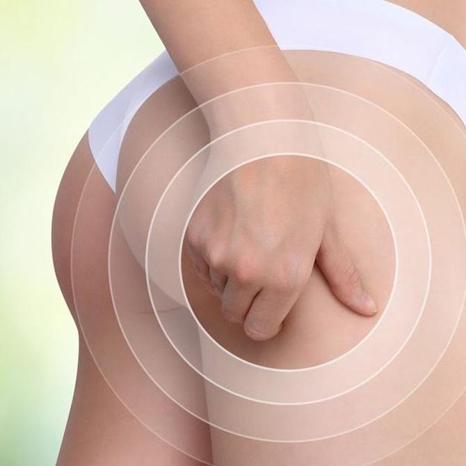 Beneficios de realizar una liposucción