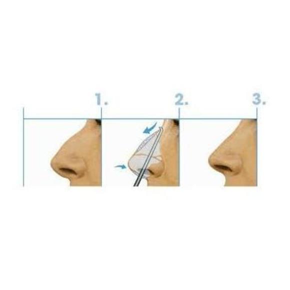 Rinoplastia: Técnicas de Clínica de Otorrinolaringología