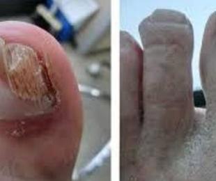 Elimina los hongos de tus uñas con laser