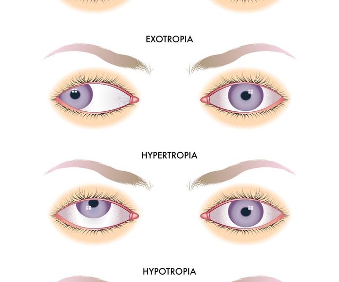 Terapia Visual : Catálogo de Centro Óptico Romero