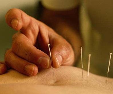 Centro de acupuntura en Sabadell