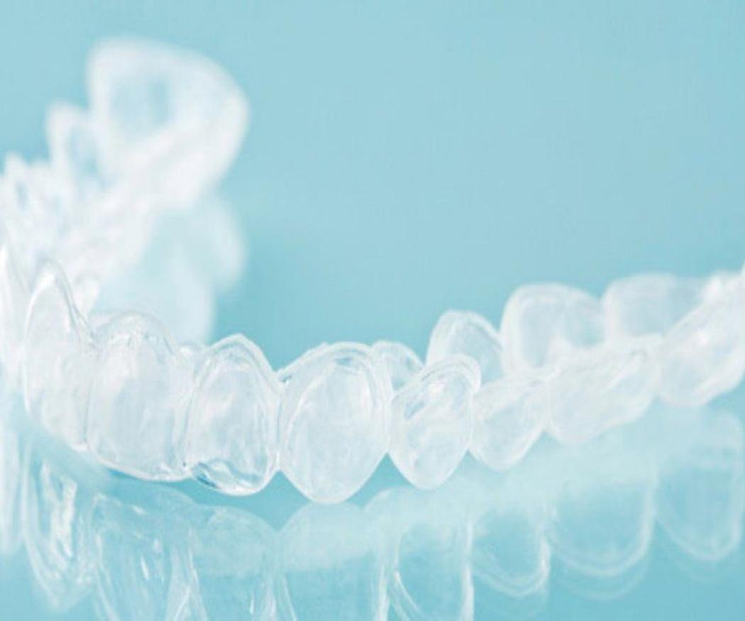 Las ventajas de la ortodoncia invisible