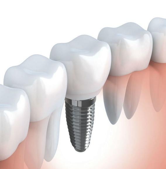 Implantología y prótesis sobre implantes: Tratamientos de Clínica Dental Xixón