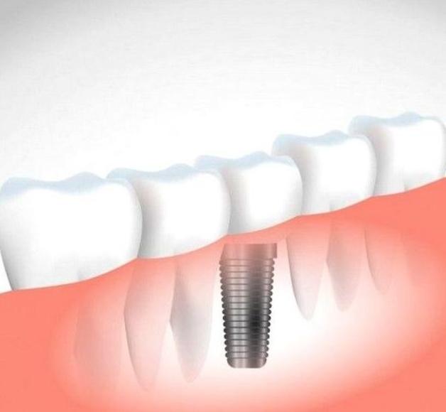 Implantes: Tratamientos dentales de Clínica Dental Flores