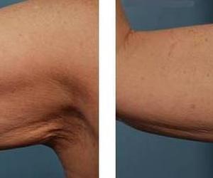 Reafirmación de brazos con Hifu 3D