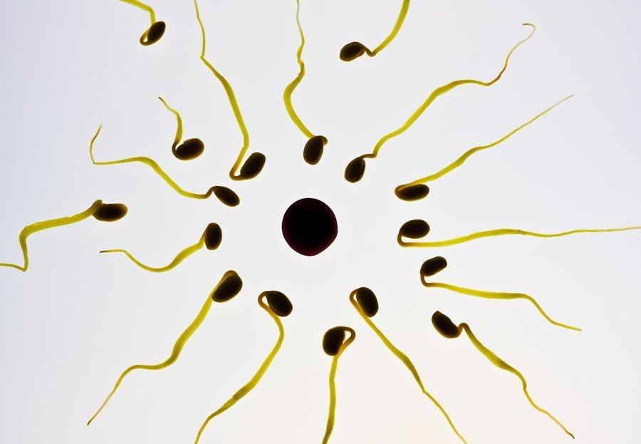 ¿Qué es un espermiograma?