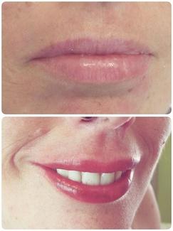 Micropigmentacion labios Completa Barcelona