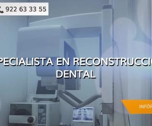 Clínicas dentales en Tenerife | Dr. Javier de Lorenzo Cáceres