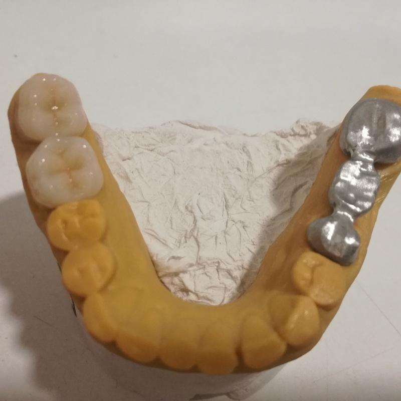 Metal composite: Servicios de Xanfra Centro Odontotécnico