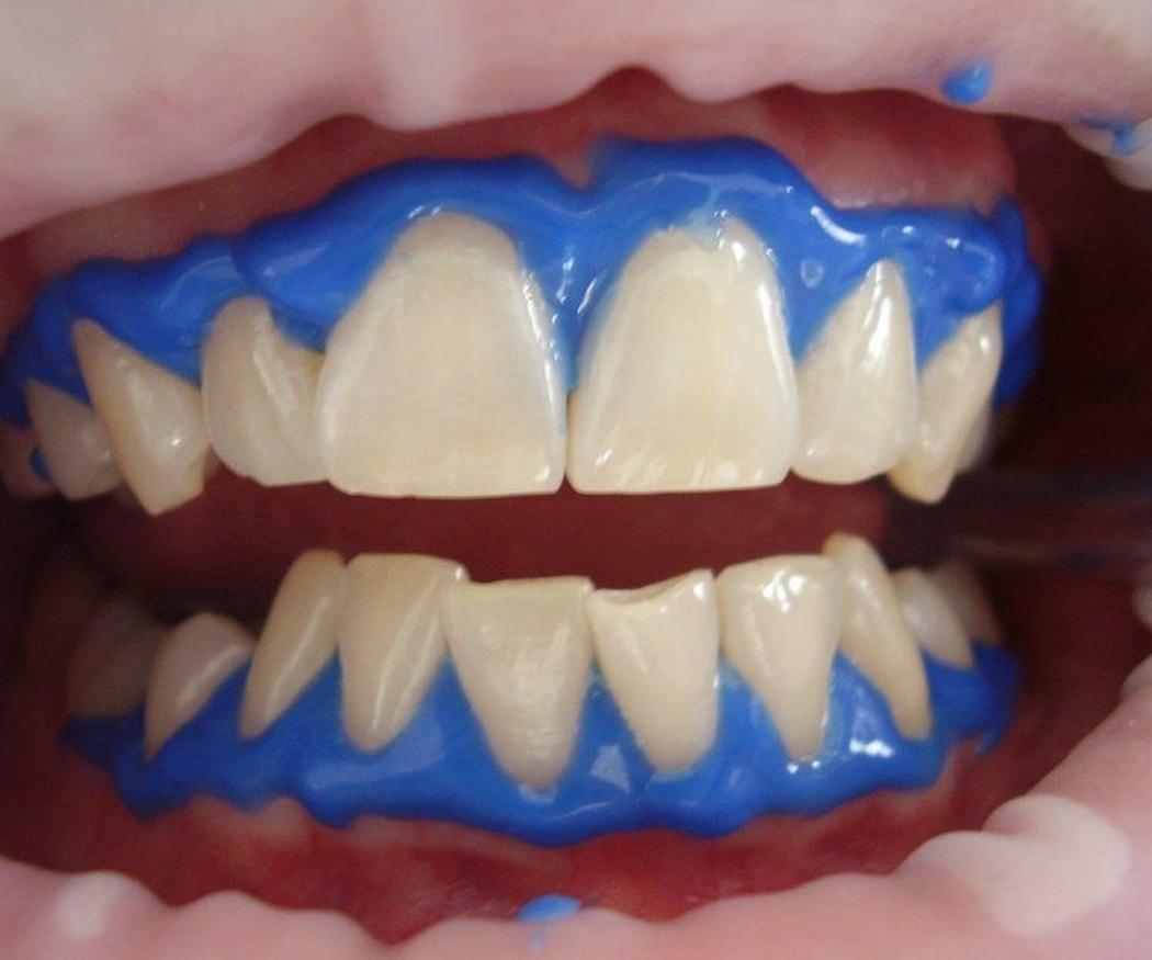 La alimentación y el blanqueamiento dental
