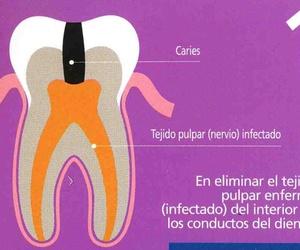 Todos los productos y servicios de Salud bucodental: Clínica Dental Dr. Javier Pérez Martínez