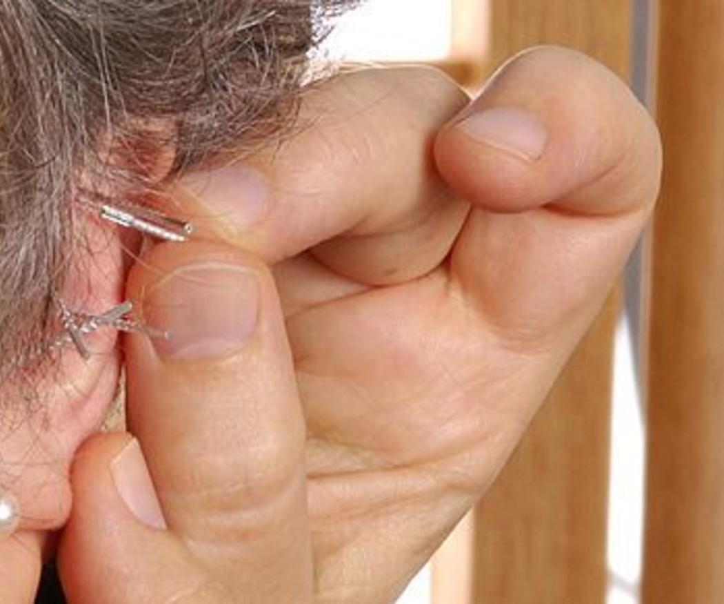Los beneficios y usos la acupuntura