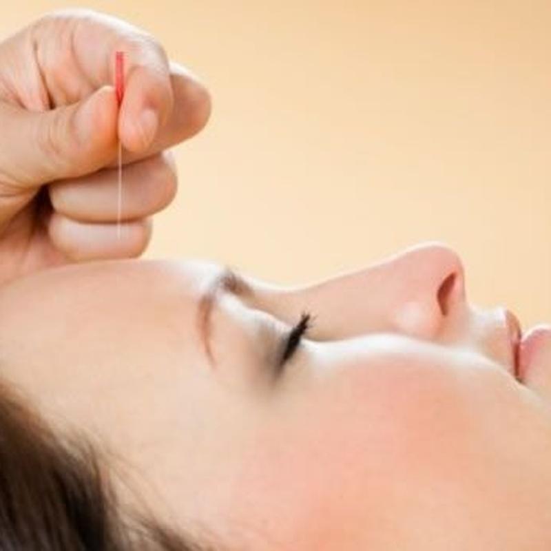 Lifting facial con acupuntura: Servicios de Terapies Naturals BIB