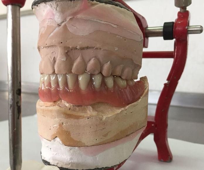 Sobredentaduras: Tratamientos de Dentalart