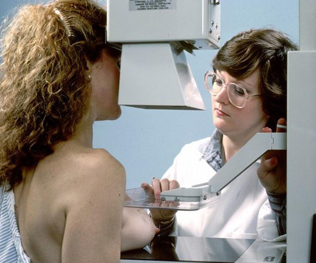 Principales síntomas para la detección del cáncer de mama