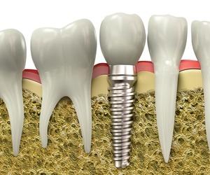 Galería de Clínicas dentales en Granada | Clínica Dental Sur