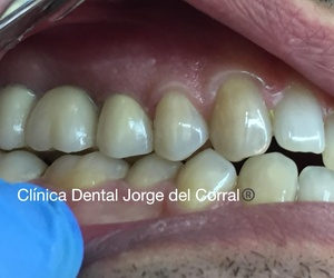 Estética Dental Hortaleza - Zirconio - Disilicato de Litio - Cerámica sin metal - Hortaleza