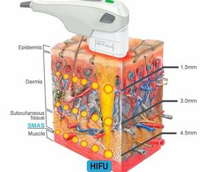 Eliminar la Grasa con HIFU 3D 1 sesión 1 talla menos. Zona desde 200€. HIFU es una de las tecnologías médico estéticas más avanzadas, potentes y efectivas que existen en el mercado y como resultado obtendrás una auténtica remodelación corporal