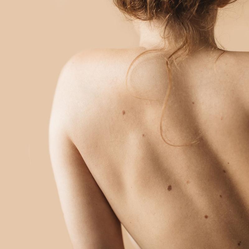 Tratamiento de lesiones benignas de la piel: Catálogo de Dra. Adriana Antesola