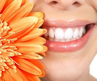 Implantología: Tratamientos Dentales de Clínica Dental La Mallola