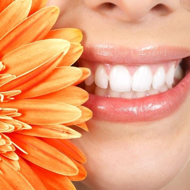 Por qué deberías alinear tus dientes y embellecer tu boca