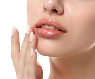 Relleno de ácido hialurónico: Tratamientos de estética de Clínica Estética Loveliness