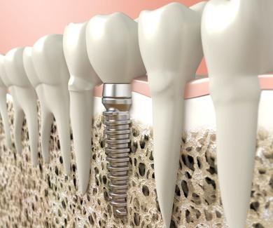 La revolución de los implantes dentales