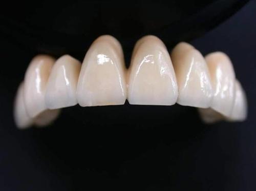 Prótesis movibles, fijas,  implantes dentales...