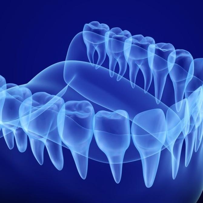 Las radiografía dentales, un elemento diagnóstico imprescindible