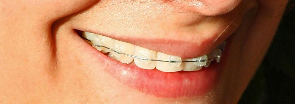 Clínicas dentales en Torrent | Clínica Dental Ibañez Teruel