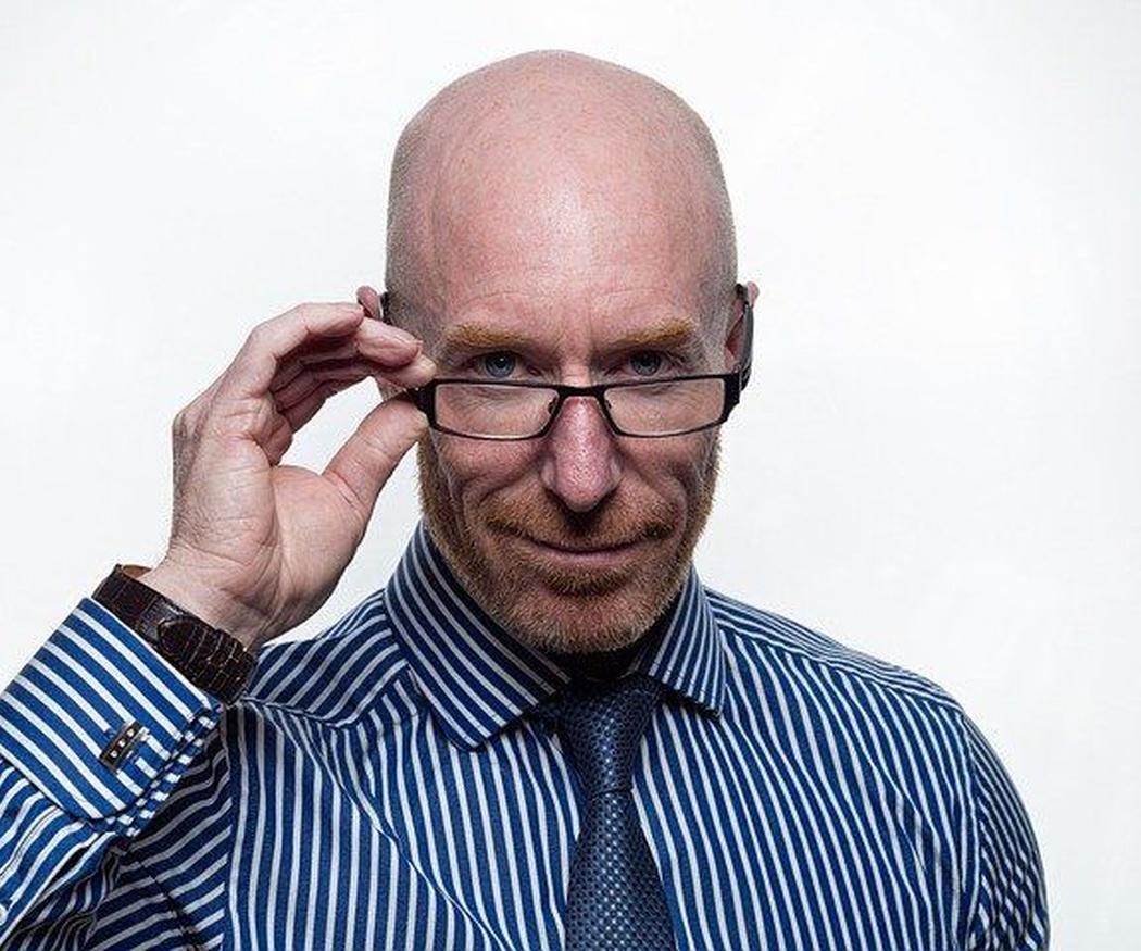 ¿La alopecia se hereda?