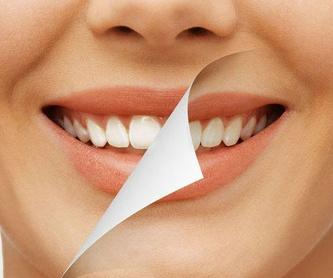 TAC - RADIOGRAFÍAS EN 3D: Tratamientos de Clínica Dental Santa Eulàlia