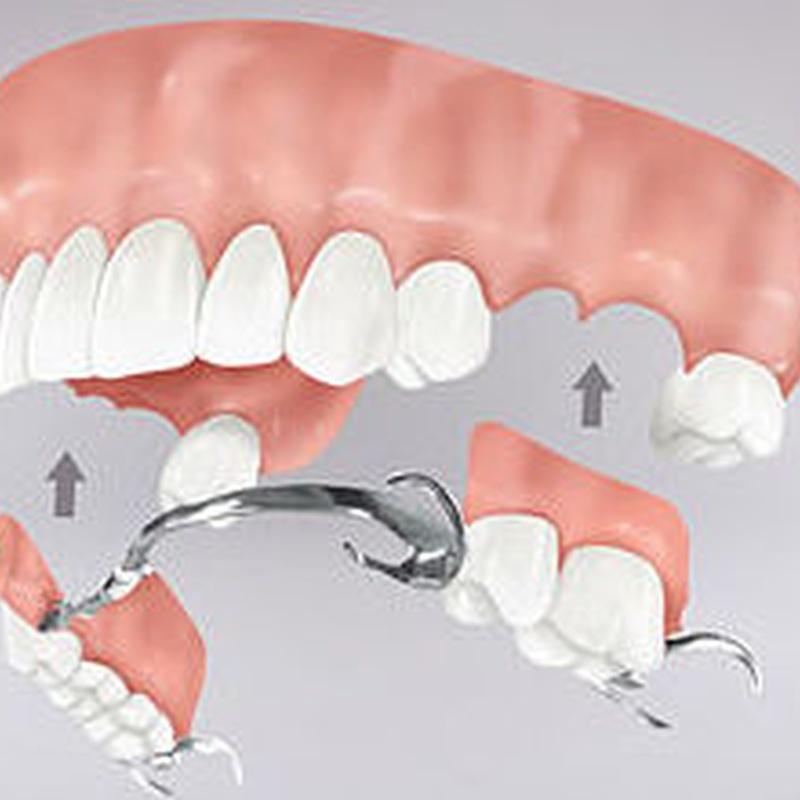 PRÓTESIS REMOVIBLE: Tratamientos de Clínica dental tres D